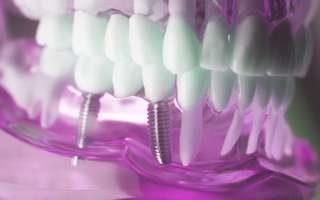 Zahnarzt Praxis Garbsen - Prothetische Implantate